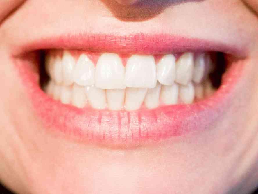 Jumlah Gigi manusia