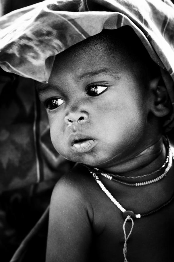 Komplikasi malaria Anak malaria-vulnerable