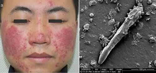 Penyakit kulit demodikosis