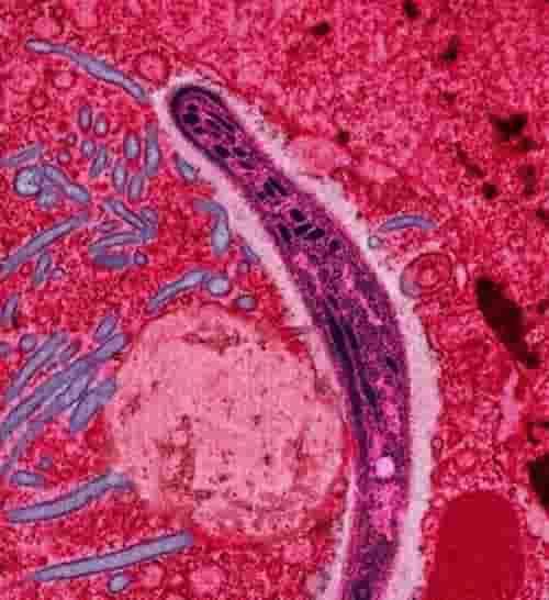 Plasmodium dari air ludah nyamuk