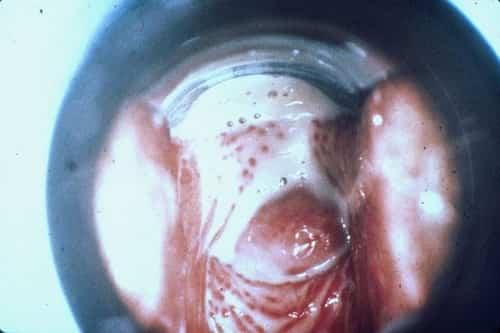 Penyakit kelamin Trichomonas vaginalis