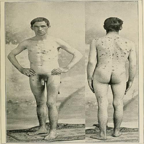 Bercak-bercak pada kulit luar yang terlihat dalam berbagai ukuran di sifilis pustular, terutama lesi berukuran besar