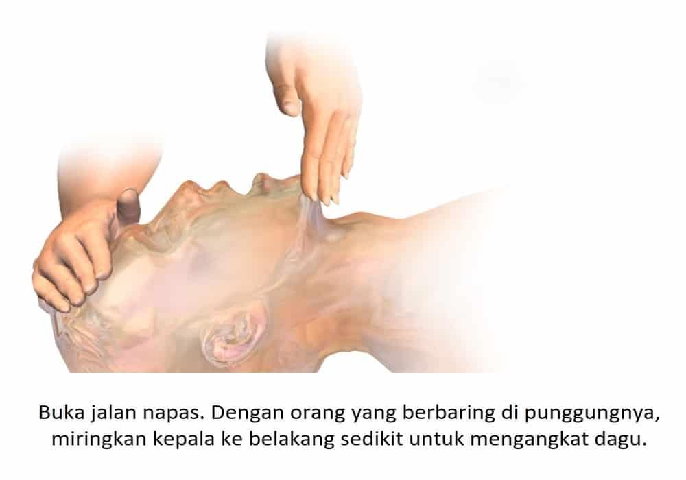 Buka jalan napas. Dengan orang yang berbaring di punggungnya, miringkan kepala ke belakang sedikit untuk mengangkat dagu.