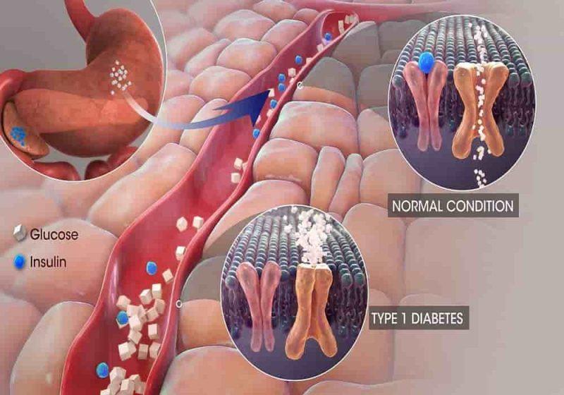 Pertolongan Pertama Kedaruratan diabetes