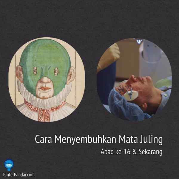Cara Menyembuhkan Mata Juling (Strabismus) Zaman Dulu Abad 16 Dan Sekarang
