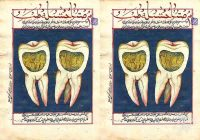 Ulat gigi