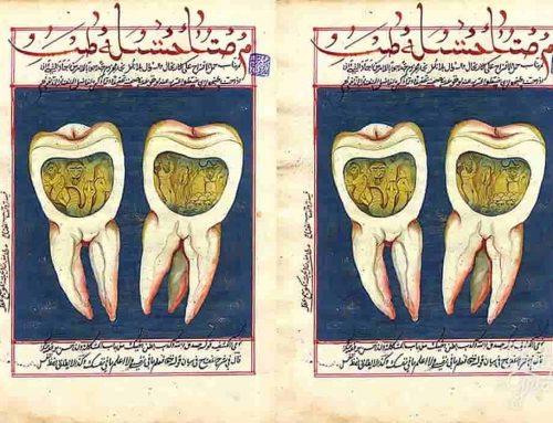 Ulat Gigi – Apa yang Menyebabkan Anda Mengalami Sakit Gigi?