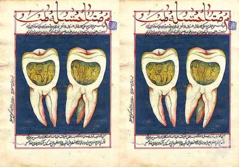 Ulat Gigi - Apa yang Menyebabkan Anda Mengalami Sakit Gigi?