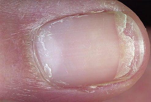 Kuku retak atau sobek