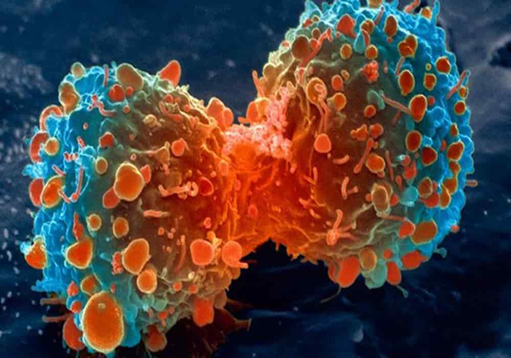 Jenis kanker - Nama, Lokasi Kanker di Tubuh dan Penjelasan ...