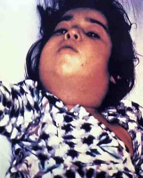 Difteria bisa menyebabkan leher membengkak