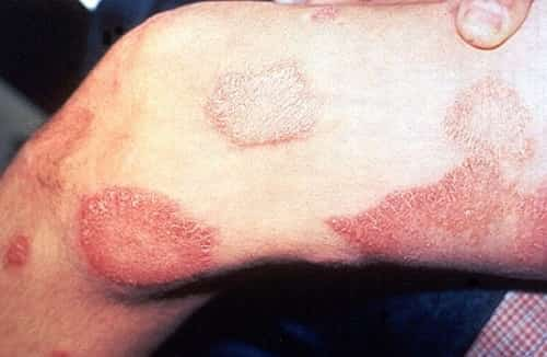 Penyakit kusta atau lepra - Lesi kulit pada paha
