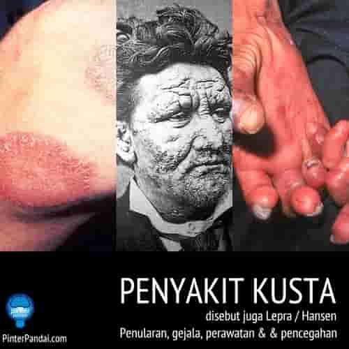 Penyakit kusta lepra hansen 2