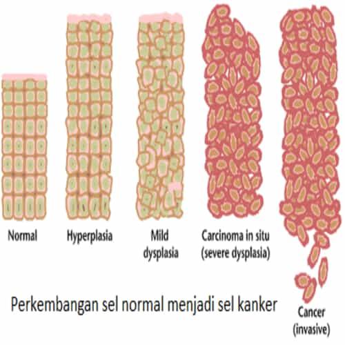 Perkembangan sel normal menjadi sel kanker