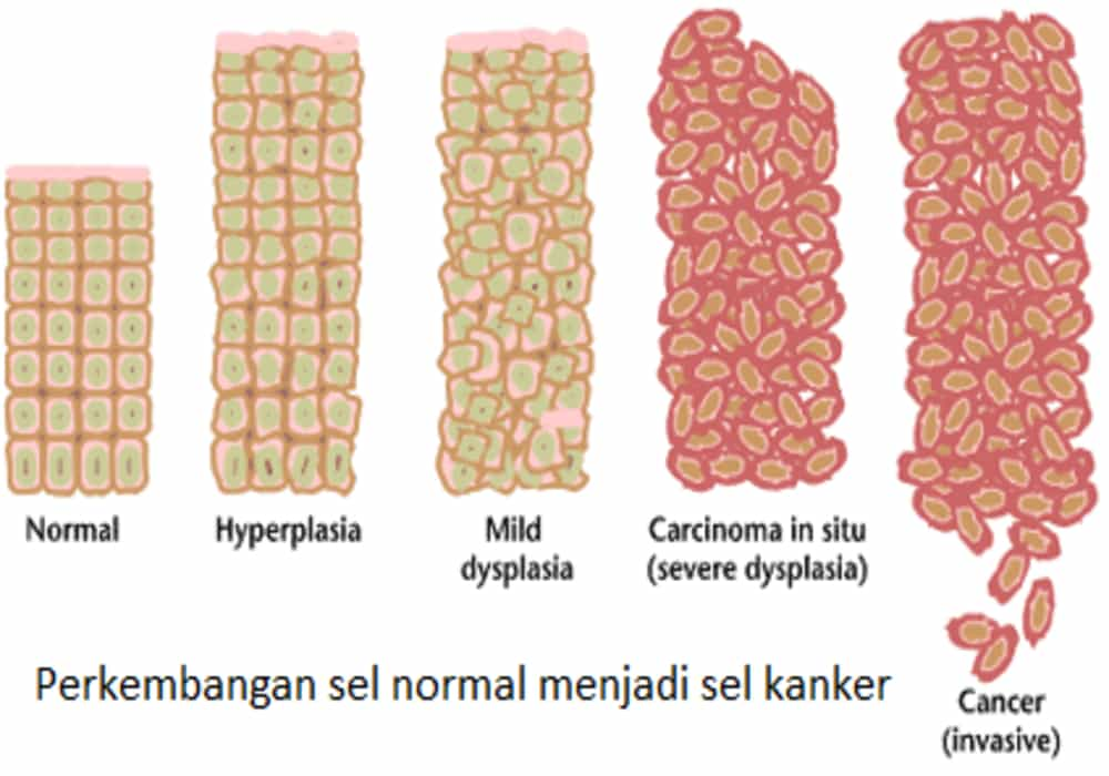 pemahaman penyakit kanker