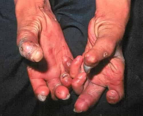 Tangan dengan jempol Z - pada penderita penyakit kusta