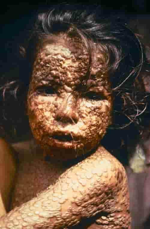 Anak terinfeksi oleh smallpox