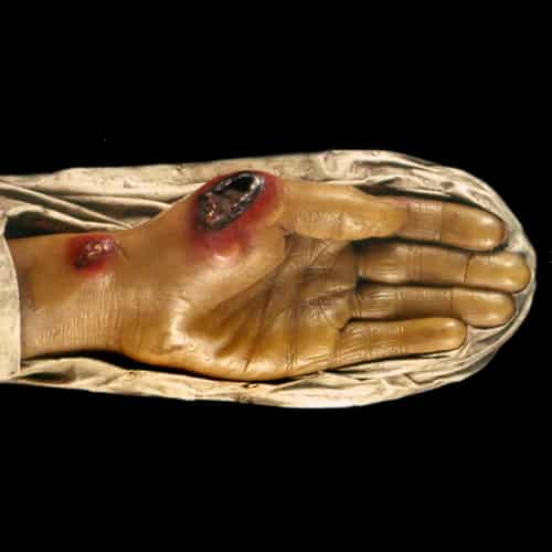 Antraks anthrax penyakit