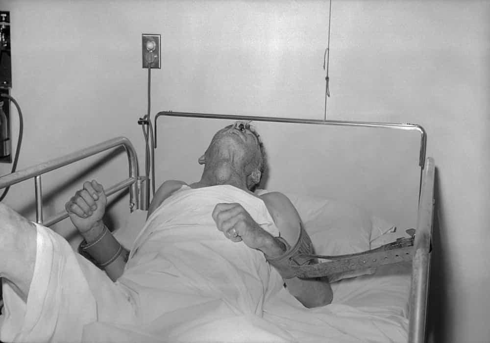 Orang terkena penyakit rabies