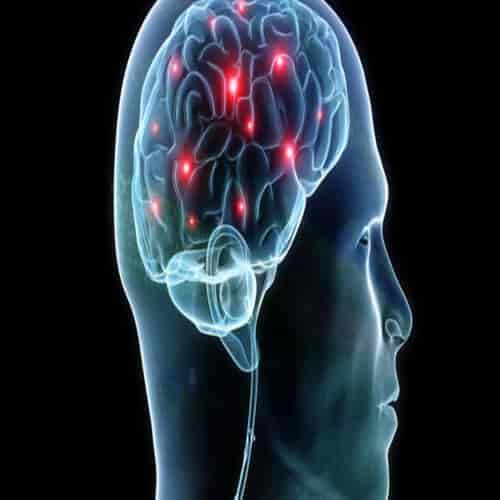Sindrom Savant Kapasitas Kecerdasan Otak Luar Biasa