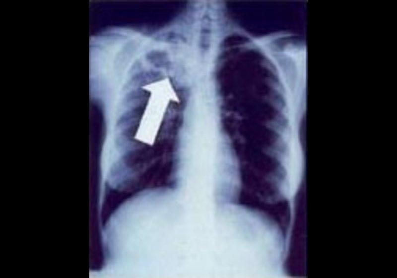 TBC Tuberkolosis
