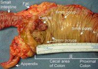 Kanker usus besar kolorektal