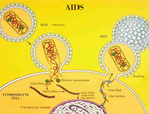 Penyebab AIDS Beserta Gejalanya – Acquired Immune Deficiency Syndrome