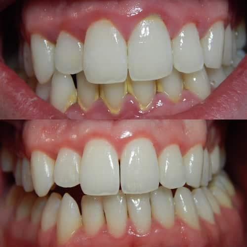 Karang gigi dan radang gusi - sebelum sesudah