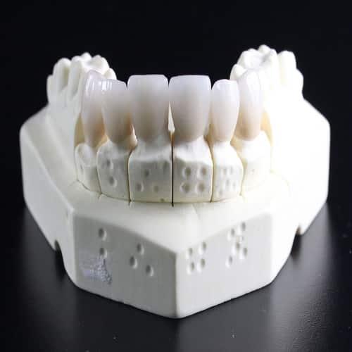 Penyebab gigi copot - gigi rontok