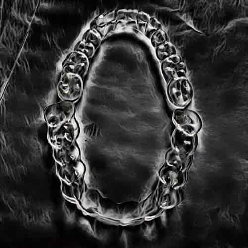 Gesekan gigi dapat diproteksi gigi plastik