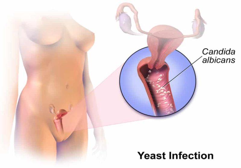 Infeksi ragi vagina Yeast infection