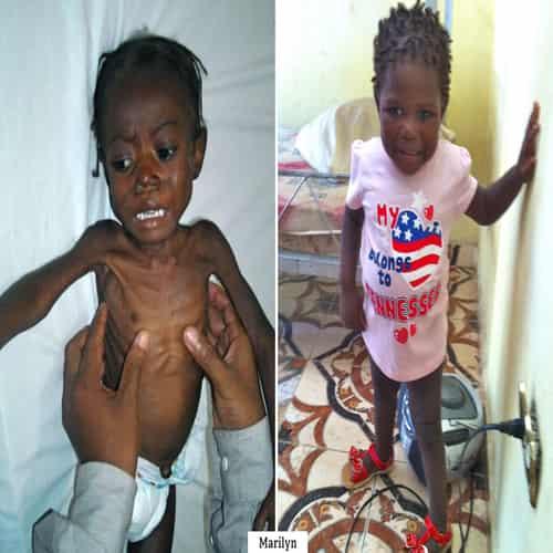 Penyakit busung lapar Kwashiorkor