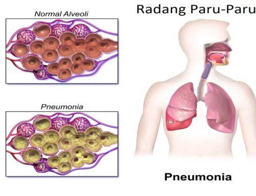 Radang Paru-Paru (Pneumonia)