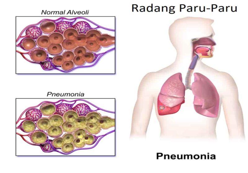 Radang paru-paru