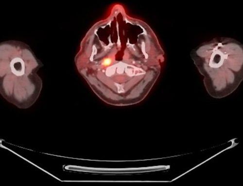 Kanker Belakang Rongga Hidung dan Mulut – Kanker Nasofaring
