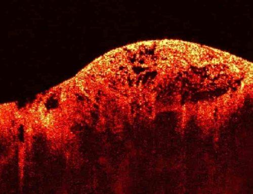 Tumor – Pengertian, Contoh, Inisiasi, Penyebab, Proses Dalam Karsinogenesis