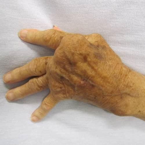 radang sendi parah di tangan yang tidak diobati rematik da asam urat