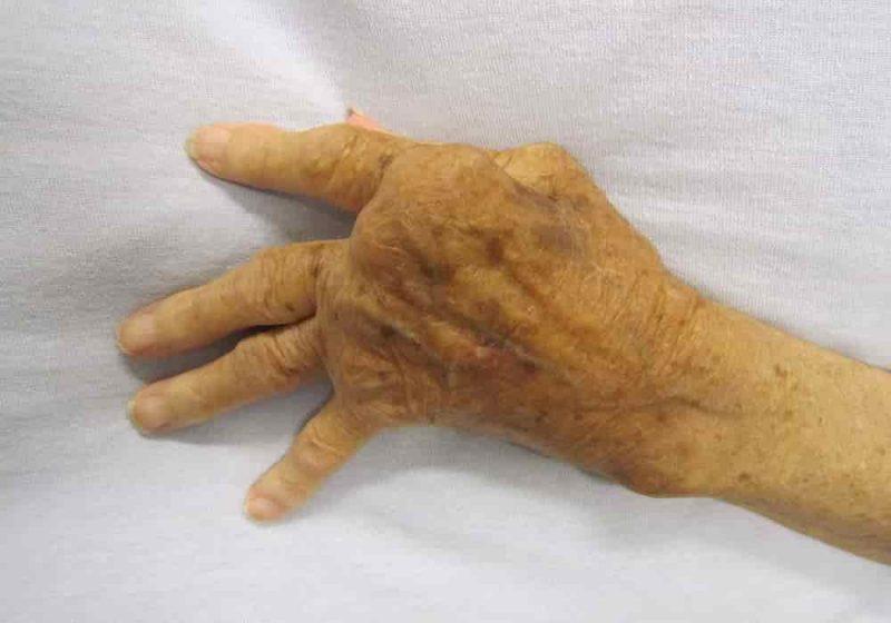 radang sendi parah di tangan yang tidak diobati rematik dan asam urat