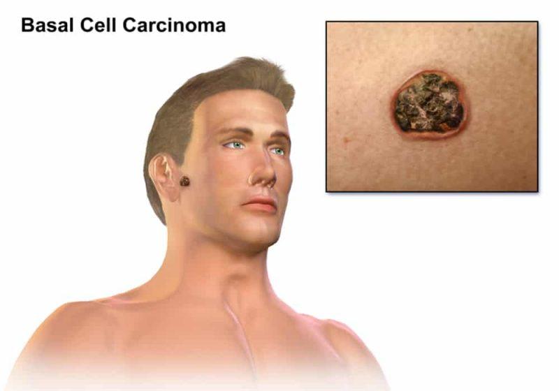 Kanker karsinoma