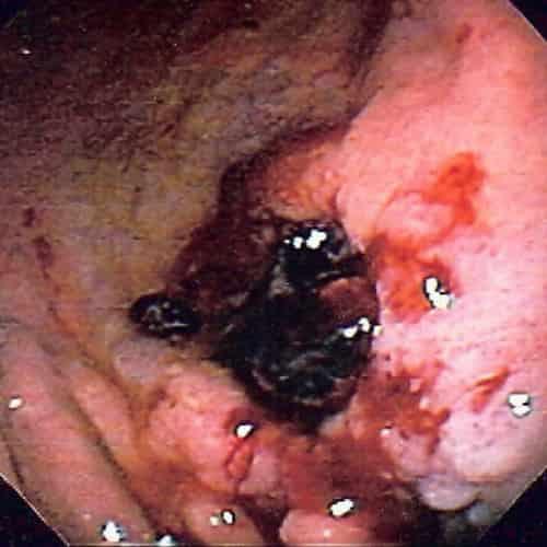 Tukak lambung gastric ulcer, salah satu penyebab muntah darah