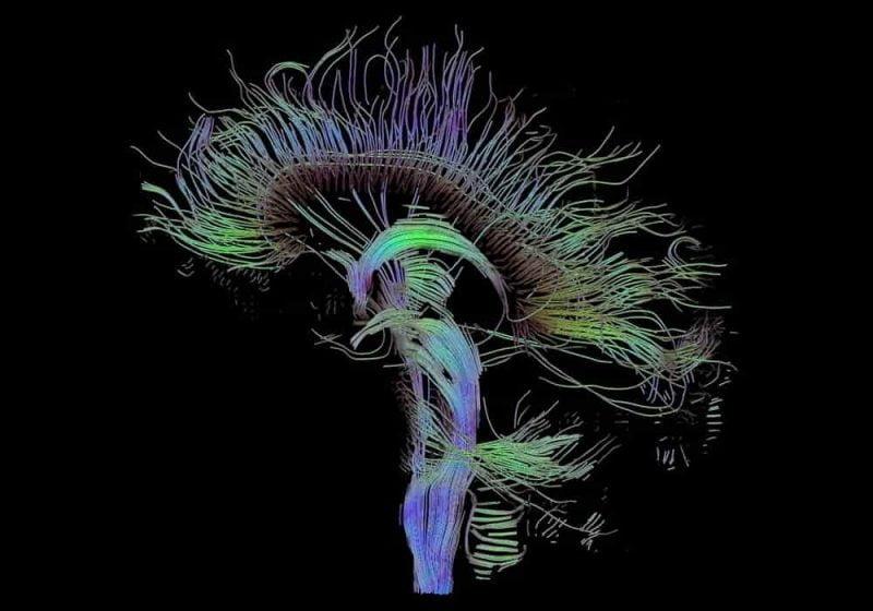 Gangguan Otak dan Sistem Saraf - Contoh Penyakit Sistem Saraf