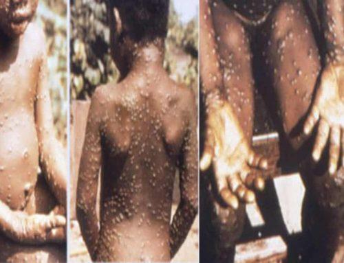 Cacar Monyet – Monkeypox – Penjelasan, Penyebab, Tanda dan Pengobatan