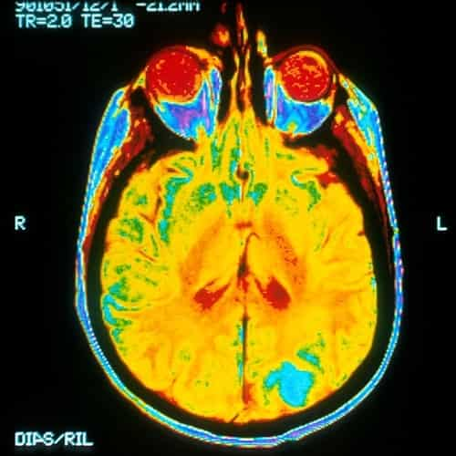 Fakta Kanker Otak Yang Mungkin Belum Anda Ketahui