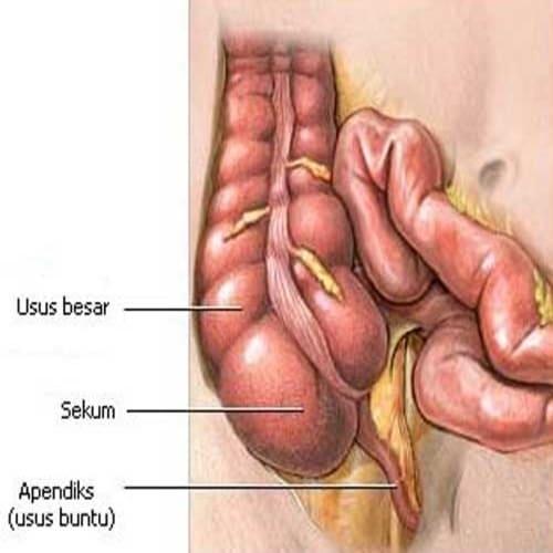 Usus buntu atau sekum adalah suatu kantung yang terhubung pada usus penyerapan serta bagian kolon menanjak dari usus besar
