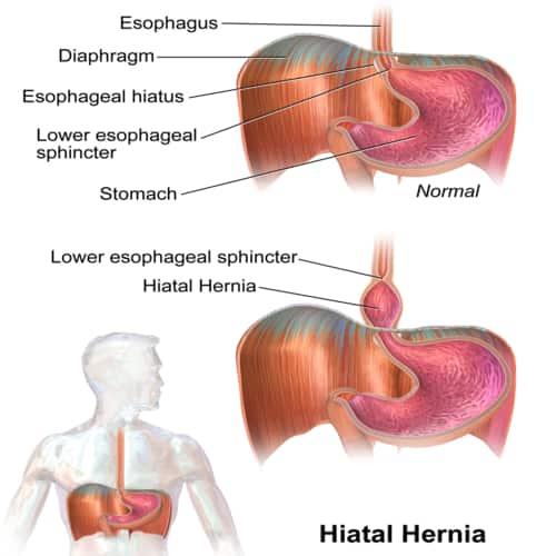 Jenis hernia hiatus