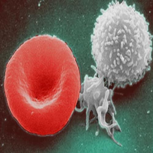 Jumlah Sel Darah Putih Yang Normal Adalah 4.300 dan 10.800 sel per mm³ kubik darah