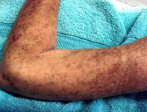 Skleroderma Penyakit Autoimun – Perubahan Pada: Kulit, Pembuluh darah, Otot, Organ Dalam