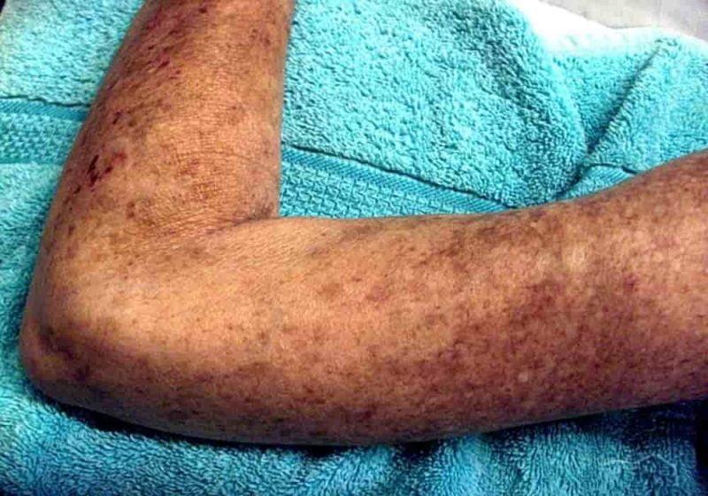 Skleroderma kulit