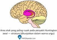 Area otak paling rusak penyakit huntington