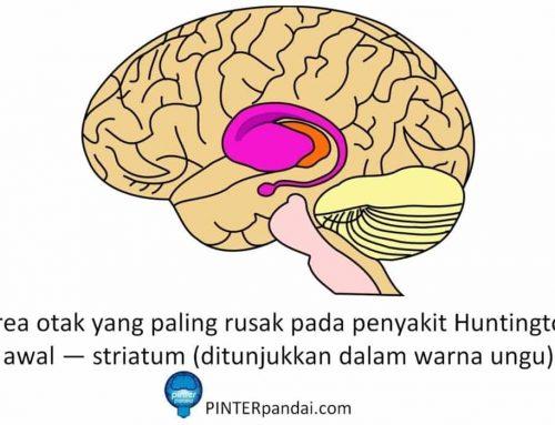 Penyakit Huntington (Chorea Huntington) – Kelainan bawaan yang menyebabkan kematian sel-sel otak – Gejala, Penyebab, Pengobatan